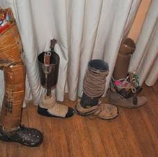 Homemade prosthetics