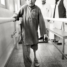 Young amputee victim of the Afghan War.