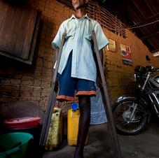 Landmine victim -DRC.