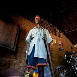 Landmine victim - Democratic Republic of the Congo