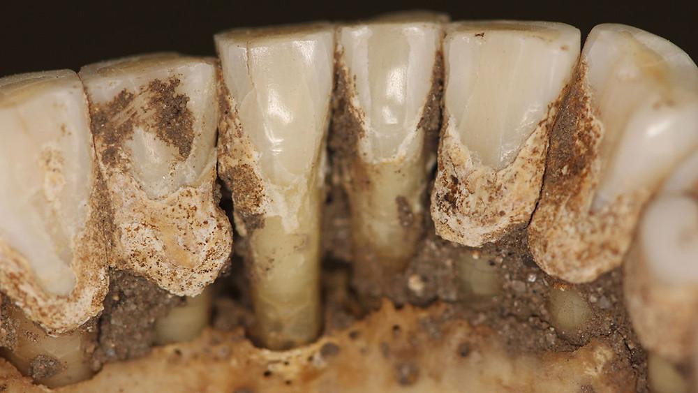 O tártaro dos dentes poderá revelar se os vikings usavam drogas