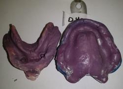 Denture Impressions