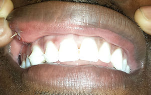 Repositioned teeth after displacement from injury