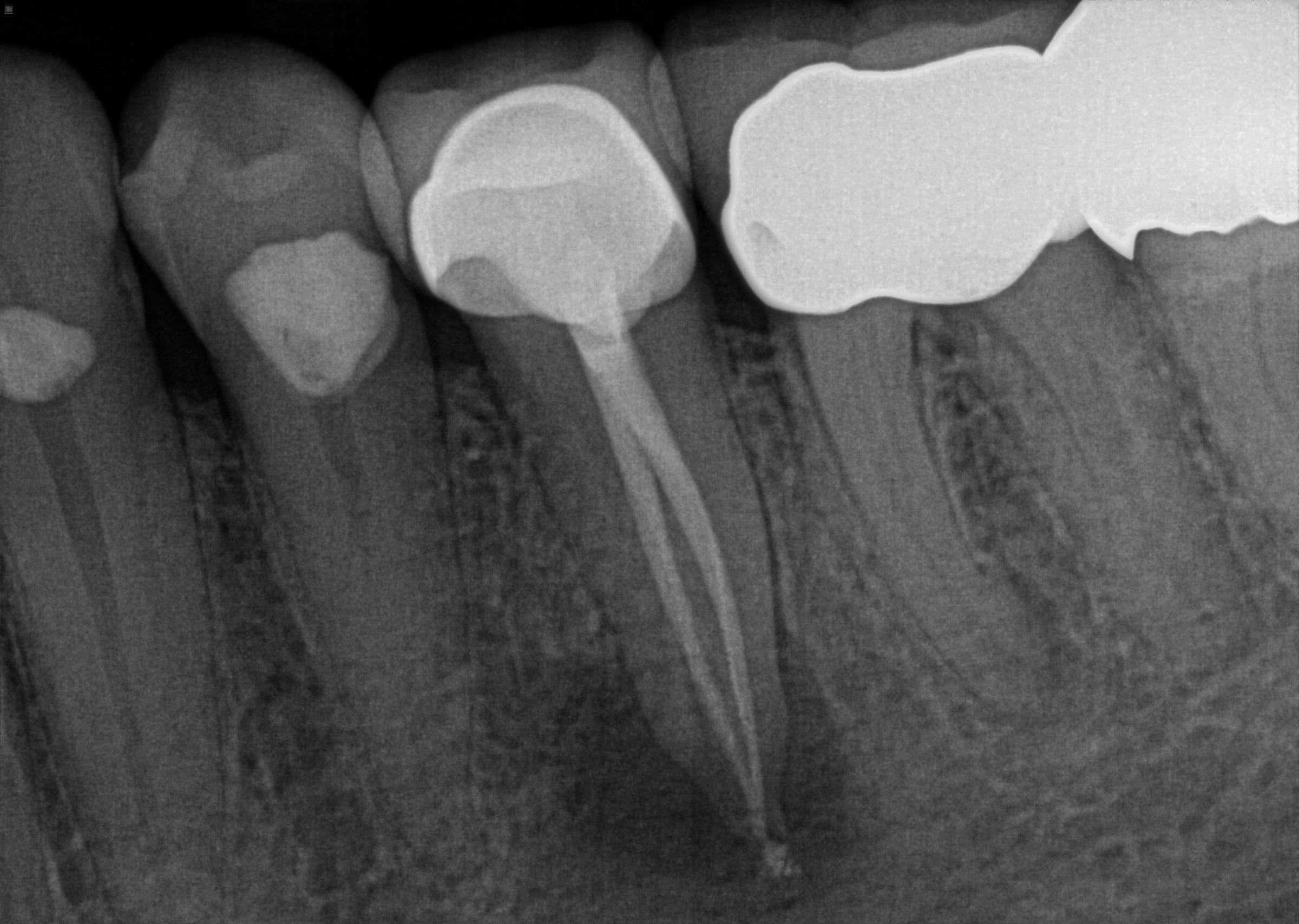 Final X-ray