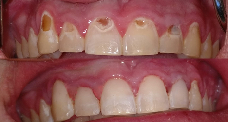 Before and after Resin Composite bonding