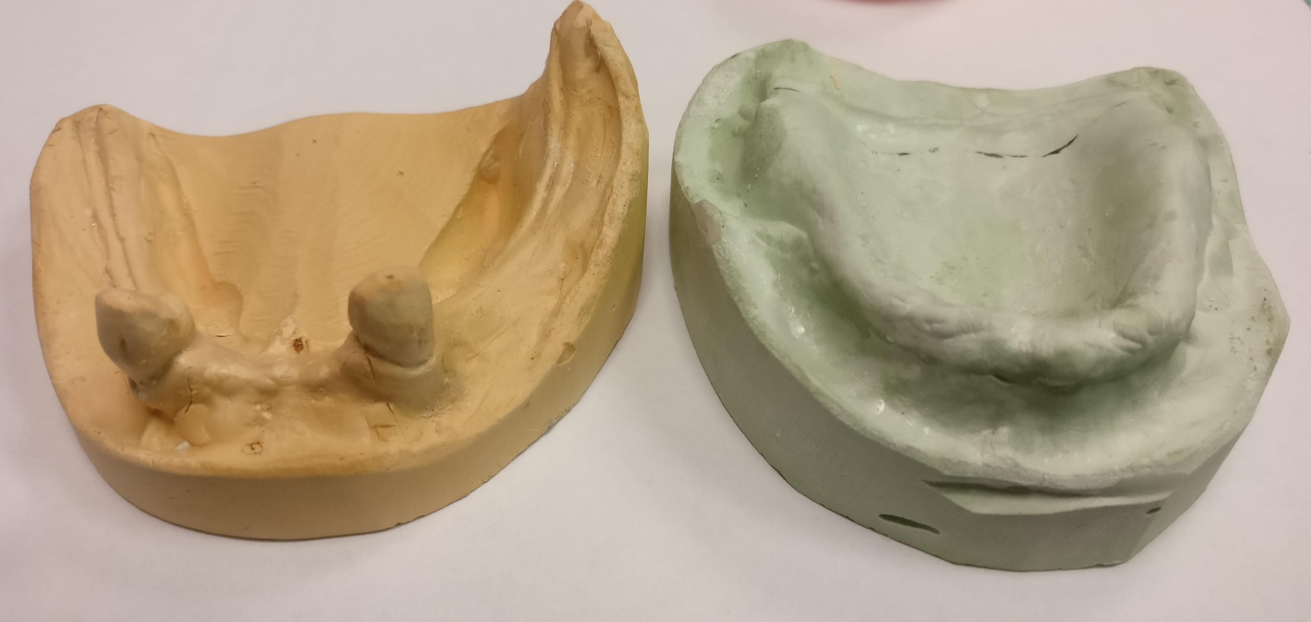 Stone Models