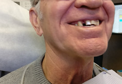 Missing front lateral incisor