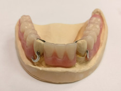 Finished Lower Partial Denture
