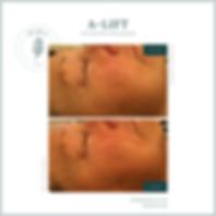 alift-facial-beforeandafter-bestfacial-antiageingfacial-wrinkles-lines-resultfacial