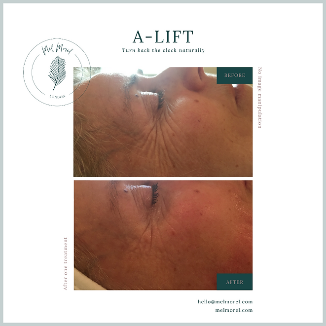 alift facial before and after picture