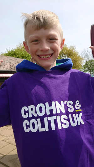 Walking and cycling for Crohn's disease and Collitis today.