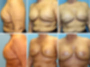 Shell Cosmetic Surgery Center