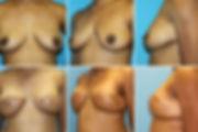 Bilateral Breast Latissimus Dorsi Reconstruction