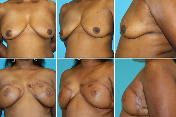 Bilateral Breast Latissimus Dorsi Reconstruction
