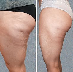 3 cellulite.png