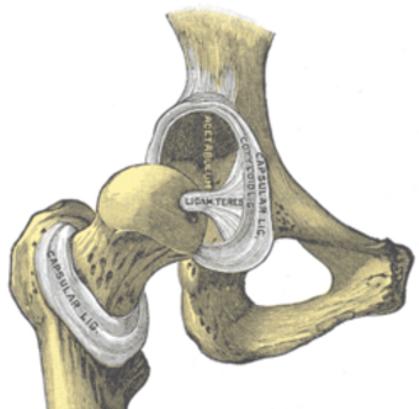 Hip dysplasia 1.png