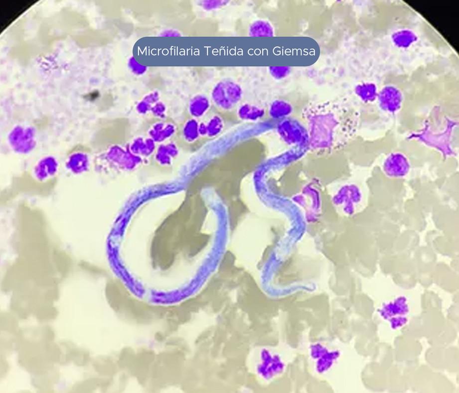 microfiliaria.jpg