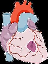 infarct1.png
