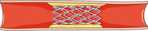 Stent.png