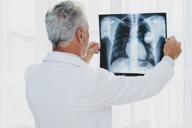 doctor-looking-chest-x-ray_23-2148285722