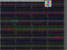 last-ortholoop_1h.jpg