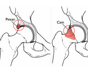 How You Can Squat Deeper and Pain-Free: How to Beat Femoral Acetabular Impingement Once and For All