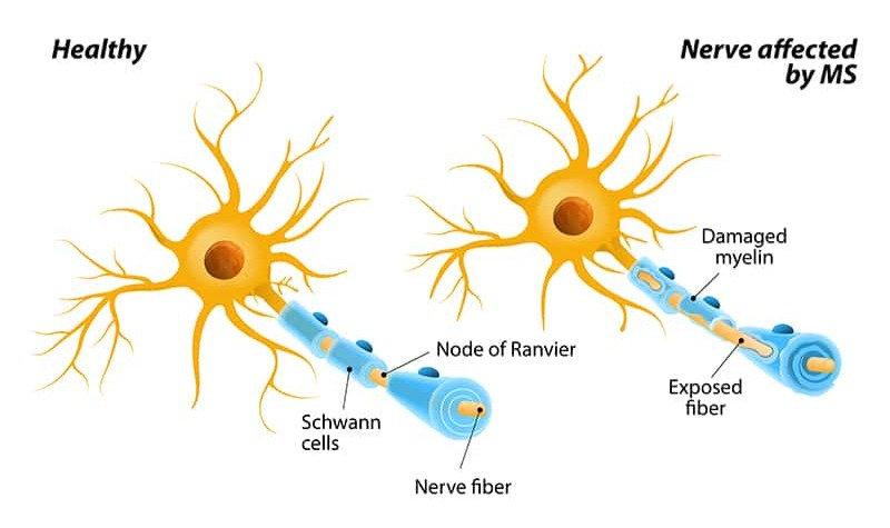 sclerosis-800w_edited.jpg
