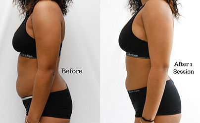 cryo-slimming-before-and-after-photo-cop