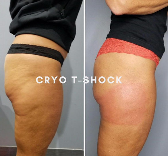 cryo-t-shock-before-after-thighs-butt.jp