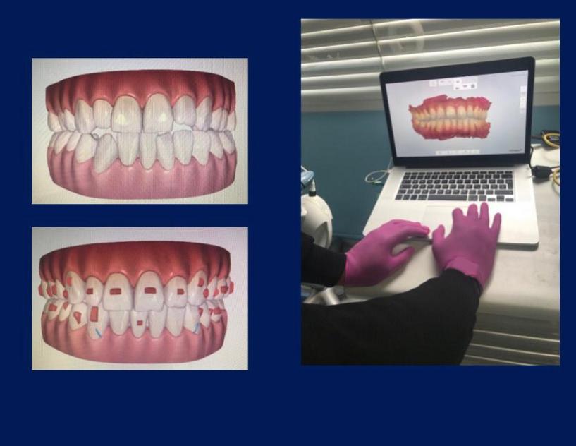 3D歯科模型
