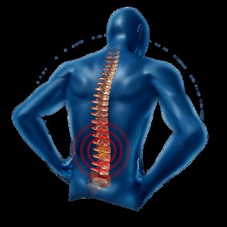 Back-Pain-Transparent-PNG.png
