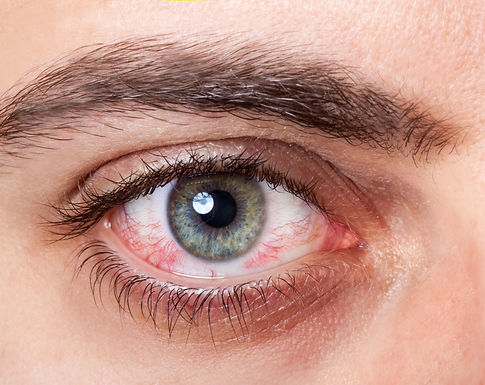 Close Up of irritated red blood eye..jpg