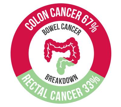 Bowel cancer breakdown