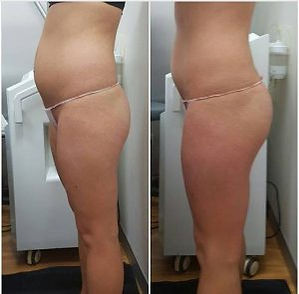 Doctor Wraps before and after 1.jpg