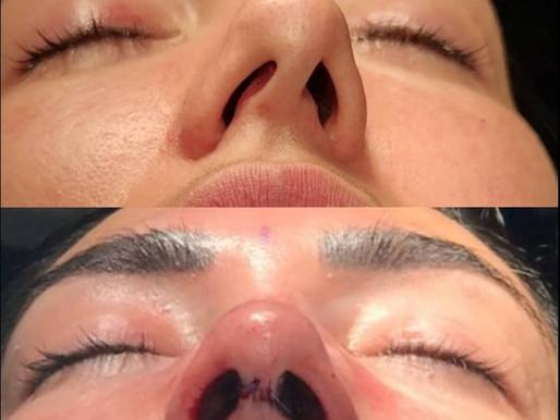 La Cirugía Estética y Funcional de la Nariz