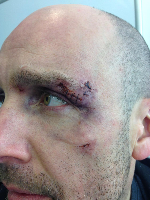 Healing injuries