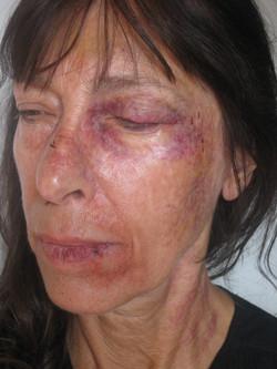'Beaten wife' makeup test