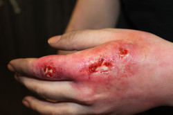 Infected hand sores