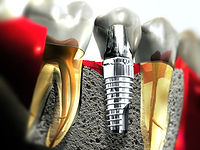 Implant graphic