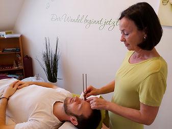 Beginn einer Tonpunktur