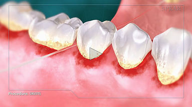 Gingivitis Hurst Dental Health.jpg