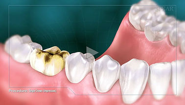 Crown Hurst Dental Health.jpg