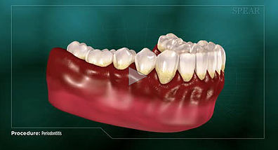 Periodontitis Hurst Dental Health.jpg