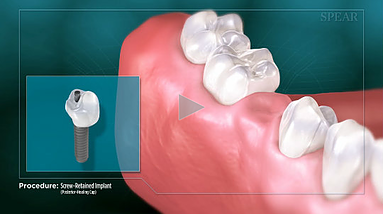 Screw Retained Implant Hurst Dental Heal