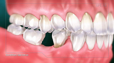 Single Tooth Loss Hurst Dental Health.jp