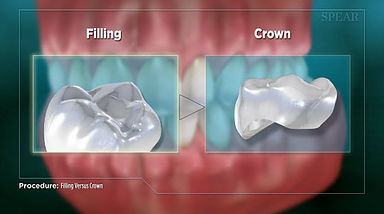 Filling Vs Crown Hurst Dental Health.jpg