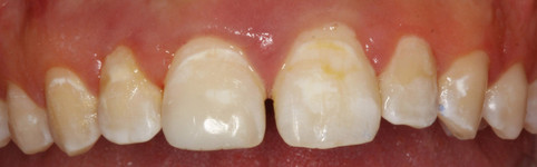 Repaired Front Tooth