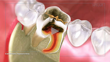 Progression of Decay Hurst Dental Health