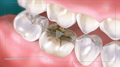 Cracked Tooth Hurst Dental Heath.jpg