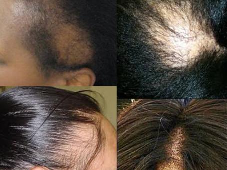 Hair Loss Epidemic